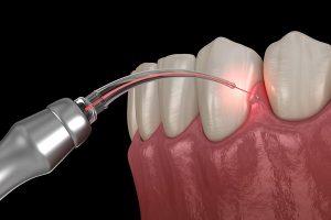 Dental Endodontic Laser